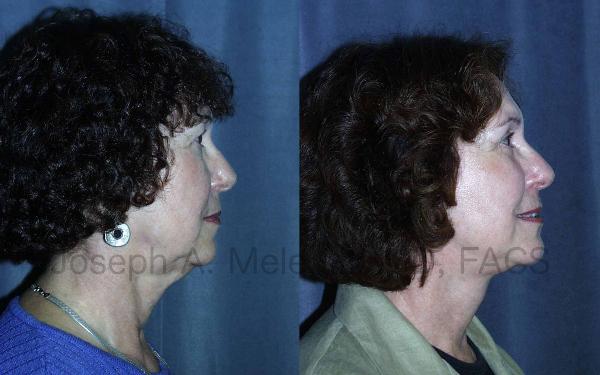 Fotos de Antes y Después de Estiramiento de la Cara (Ritidectomía)